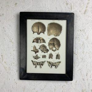 cadre photo anatomie La Métallerie fine Os de la face
